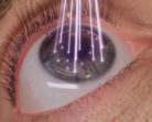 Types of Lasik Eye Surgeries Available in India and US?