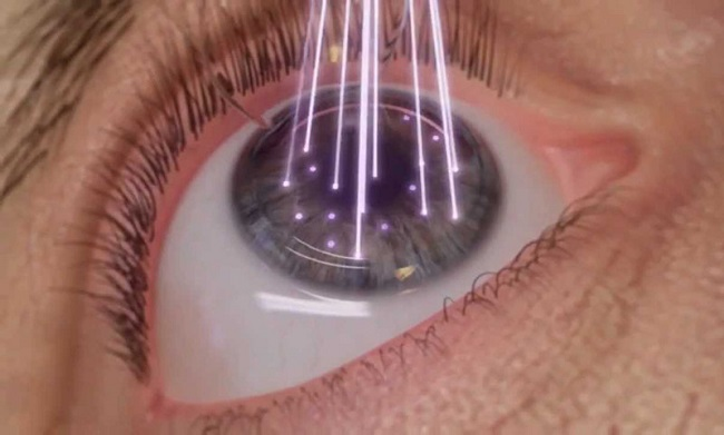 laser eye surgeroy