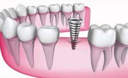 Dental Implants Using 3D Technology for Maximized Benefits