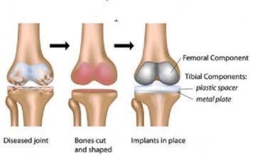 total-knee-replacement-surgery